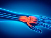 7 упражнений для укрепления рук, запястий и предплечий