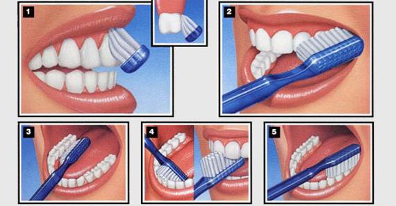chistka-zubov