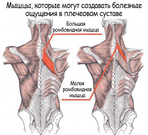 «Боль и напряжение исходят от больших и малых ромбовидных мышц»